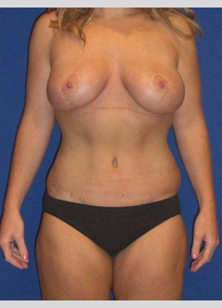After This 27 year old woman lost 90 pounds after gastric bypass surgery.  She wanted to have a tighter tummy, fuller and rounder breasts, and smaller thighs.  Dr. Kavali performed an abdominoplasty with liposuction of the hips and waist, a breast augmentation with 339 cc gel implants, a breast lift (mastopexy), and liposuction of the inner and outer thighs.