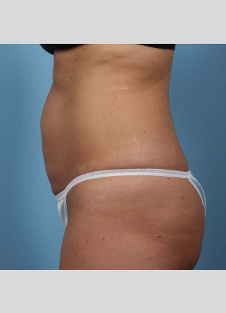 """Before This 37 year old female had 4 cycles of CoolSculpting on her abdomen.  Her """"after"""" photos were taken only 30 days after her treatment."""