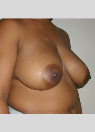 "Before This 35 year old female desired a breast reduction to alleviate back pain and shoulder pain.  Dr. Kavali performed a SPAIR short scar breast reduction technique, removing about 370 grams per breast.  Her ""after"" photos were taken about 6 months after surgery."