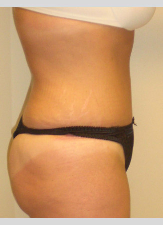 After This mom had an abdominoplasty (tummy tuck) to remove loose skin an
