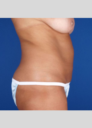After This 49 year old female had 8 hours of CoolSculpting to achieve her contouring goals.  She treated her abdomen, waist, and lower back.