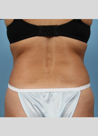 Before This 40 year old Atlanta female chose CoolSculpting to contour her back and bra rolls.  She had 2 cycles of treatment on her lower back and is shown about 3 months after that treatment.