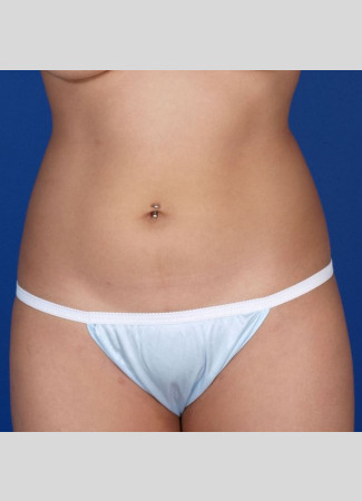 "After This 27 year old female had CoolSculpting to contour her abdomen, waist, and lower back.  She had a total of 6 treatment hours.  Her ""after"" photos were taken about 60 days after her last treatment."