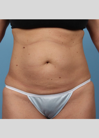 "Before This 37 year old female had 4 cycles of CoolSculpting on her abdomen.  Her ""after"" photos were taken only 30 days after her treatment."