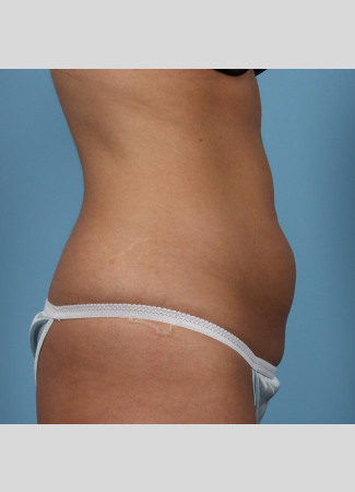 Before This 23 year old Atlanta female chose CoolSculpting to contour her abdomen.  She first had 3 treatment cycles on her lower abdomen, then came back for another 2 treatment cycles on her upper abdomen. Her final photos were taken about 2 months after her last treatment.