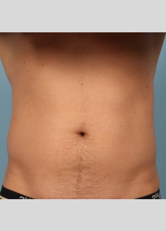 Before This Atlanta man chose CoolSculpting to contour his abs and waist. He is shown about 2 months after his treatment.