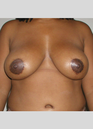 "After This 35 year old female desired a breast reduction to alleviate back pain and shoulder pain.  Dr. Kavali performed a SPAIR short scar breast reduction technique, removing about 370 grams per breast.  Her ""after"" photos were taken about 6 months after surgery."