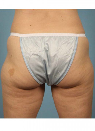 Before This 42 year old Atlanta woman wanted to contour her outer thighs.  Dr. Kavali discussed her options, and she chose to have liposuction done in the office under local anesthesia (awake, but numb).  She is shown before and 6 months after her procedure.