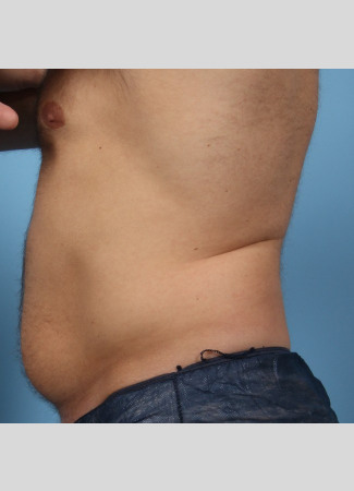 Before This Atlanta male chose CoolSculpting to contour his abdomen and waist. He is shown before and about 2 months after his treatment. He completed 3 treatment cycles