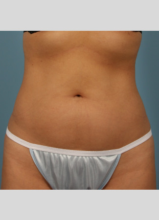 After This 23 year old Atlanta female chose CoolSculpting to contour her abdomen.  She first had 3 treatment cycles on her lower abdomen, then came back for another 2 treatment cycles on her upper abdomen. Her final photos were taken about 2 months after her last treatment.
