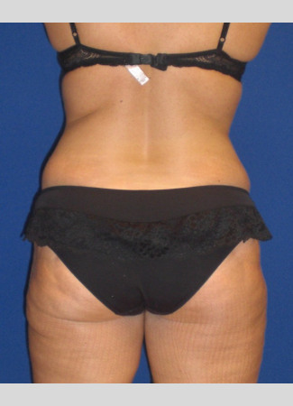 After This Georgia mom had an abdominoplasty (tummy tuck) to remove loose skin and tighten her tummy muscles. She also had liposuction of her waist at the same time.  She is shown about 1 year after surgery.