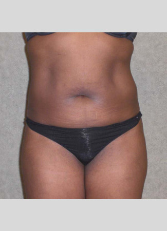 Before This 46 year old female had 2 hours of CoolSculpting to contour her upper and lower central abdomen.