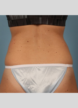 Before This 26 year old Atlanta woman chose CoolSculpting for her lower back (love handles).  She is shown about a month after her treatment.