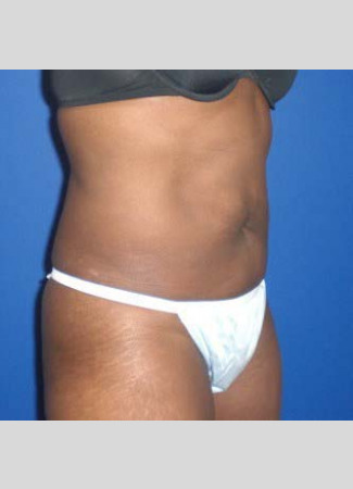 After This 46 year old female had 2 hours of CoolSculpting to contour her upper and lower central abdomen.