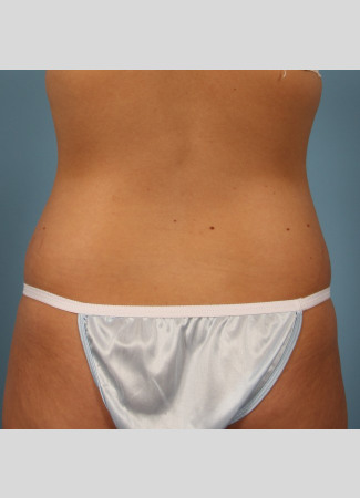 After This 22 year old underwent CoolSculpting for her abdomen and waist.  Her photos were taken about 3 months after having 6 treatment cycles.