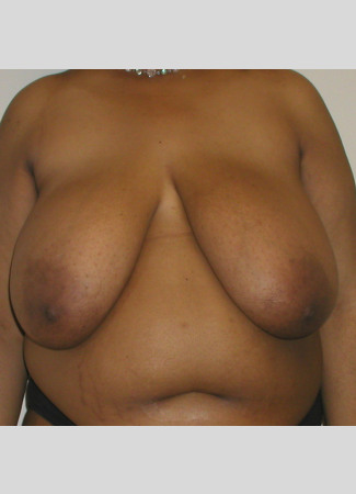 "Before This 31 year old female wanted smaller, lifted breasts, as well as relief from back, neck, and shoulder pain. Dr. Kavali performed a SPAIR Short Scar Breast Reduction, removing about 900 grams per breast. Her ""after"" photos were taken about 6 months after surgery."