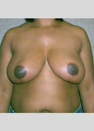 "After This 35 year old female desired relief from back pain and shoulder pain due to her heavy breasts.  Dr. Kavali performed a SPAIR short scar breast reduction technique and removed about 700 grams from each breast.  Her ""after"" photos were taken about 6 months after surgery."