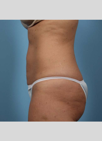 "After This 37 year old female had 4 cycles of CoolSculpting on her abdomen.  Her ""after"" photos were taken only 30 days after her treatment."