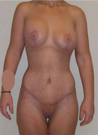 After This 20 year old female lost 120 pounds after gastric bypass surgery.  Dr. Kavali performed a Lower Body Lift, Upper Body Lift, Vertical Thigh Lift, and Breast Augmentation and Lift using 400 cc gel implants.