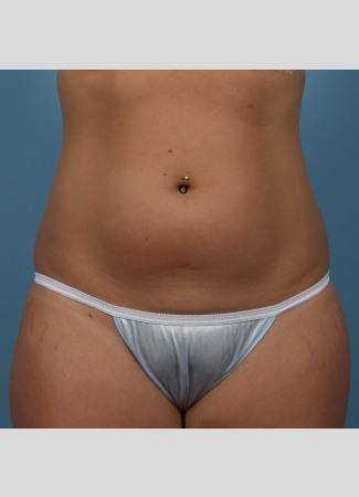 Before This 22 year old underwent CoolSculpting for her abdomen and waist.  Her photos were taken about 3 months after having 6 treatment cycles.