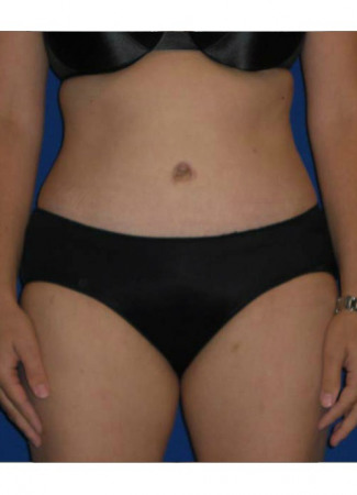 After This Atlanta mom had an abdominoplasty (tummy tuck)  to remove loose skin and tighten her tummy muscles. She also had liposuction of her waist at the same time.  She is shown about 1 year after surgery.
