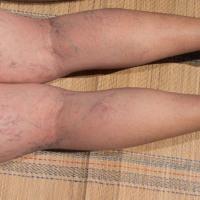 Laser Spider Vein Removal Treatment